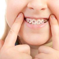 ortodoncias-ninos-blog-eider-orekan
